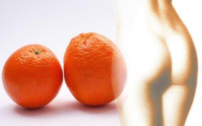 Naturalne sposoby na cellulit                                        5/5(2)
